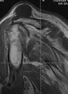 Surgical Treatment Of An Aseptic Fistulized Acromioclavicular Joint Cyst  A Case Report And
