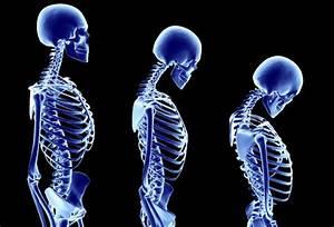 plantmedicine: WHY MEN ARE THE WEAKER SEX WHEN IT COMES TO BONE HEALTH  Osteoporosis Bone Health