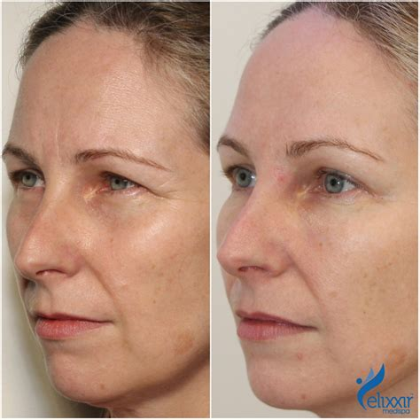 Anti-Wrinkle Injections - Elixxir Medispa by Dr Miroshnik
