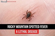 Rocky Mountain Spotted Fever: A Lethal Disease | Health ...