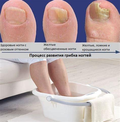 ванночки для ногтей из оливкового маска