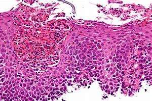 File:Eosinophilic esophagitis - very high mag.jpg