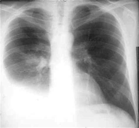 pleurisy ray chest pleuritis pleural effusion hole lung tb tuberculosa air around through depict respiratory radiographs disorder various build fluid