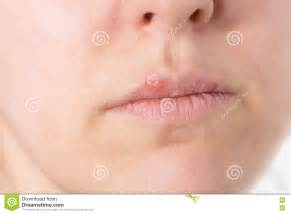 Herpes Blisters On Lips Female Cartoon Vector