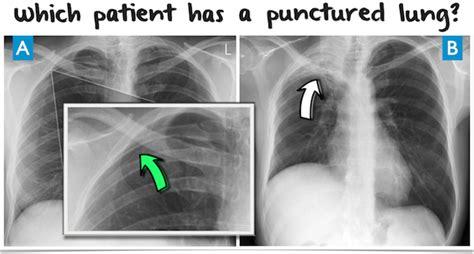 international day  radiology chest  ray quiz
