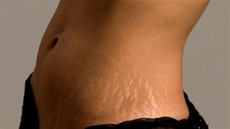 sudden hair loss in stretch marks home remedies