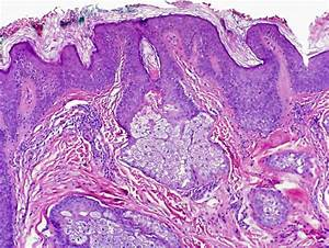 The gallery for --> Acanthosis Histology
