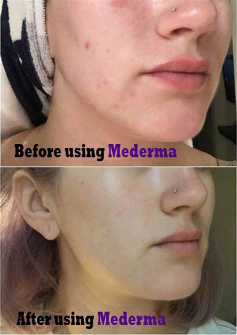 Mederma Acne scars cream | Mederma acne, Mederma acne