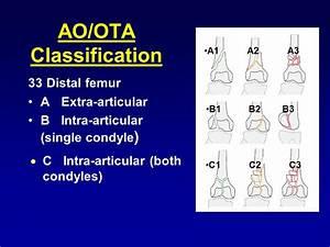 Distal Femur Fractures - ppt video online download