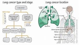 Lung Cancer Location
