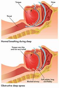 Sleep Apnea Symptoms  How A Sleep Study Test Can Help