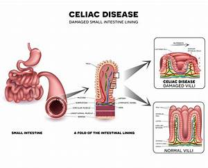 Intestinal Damage Unavoidable For Children With Celiac