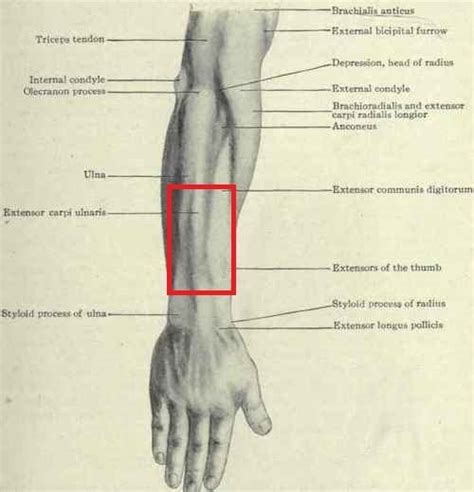 In the forearm they make your wrist move up or down (like the movement you this pictures shows what a colles' fracture looks like from the outside Pain/Tightness in forearm. Tendonitis??
