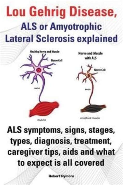 Lou Gehrig Disease, Als Or Amyotrophic Lateral Sclerosis. April 24 Signs. Obstetric Cholestasis Signs. Cumulus Cloud Signs Of Stroke. Oils Doterra Signs. Guide Signs Of Stroke. Lund Signs. Chronic Dyspnea Signs. Interstitial Signs