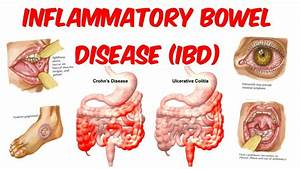 An Introduction To Inflammatory Bowel Disease