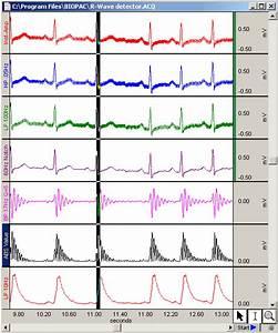 Bme Signal Processing