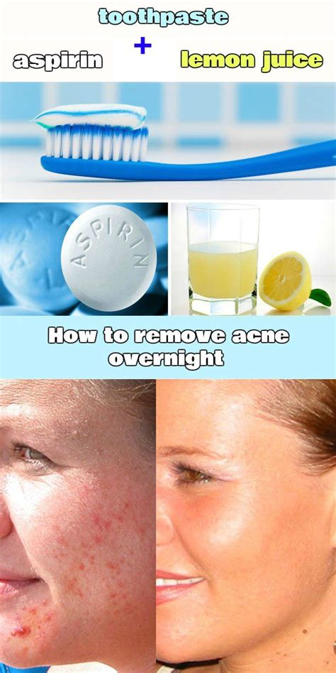 best treatment for pimples 25 best ideas about acne treatment on acne