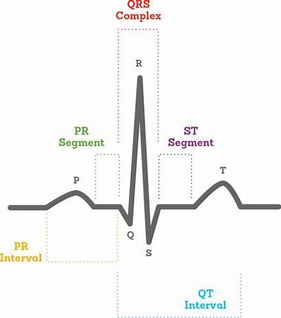 Ecg Drawing Heart Activity Rate Ekg Diagram