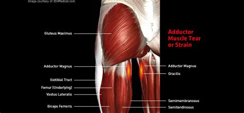 Adductor Muscle Tear Or Strain  Thermoskin  Supports And