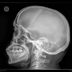 Pituitary macroadenoma   Image   Radiopaedia.org