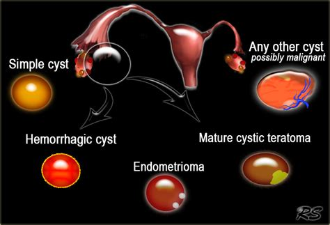 The Radiology Assistant : Diagnostic Work up of Ovarian Cysts