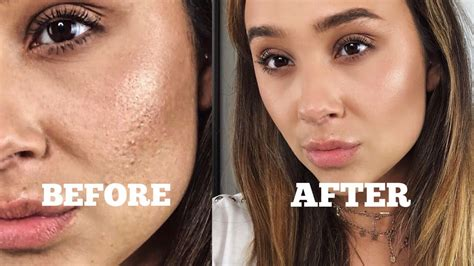 hide  pimples  makeup mugeek vidalondon