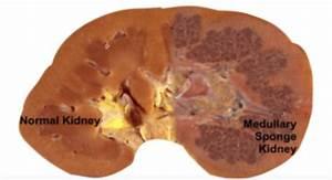 The Diagnostic Dilemma Of Medullary Sponge Kidney