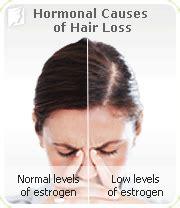 excessive hair shedding stress hair loss symptom information 34 menopause symptoms