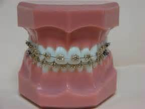 Gold Braces with Color