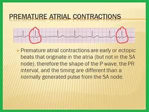 Telemetry Technician Course: Premature beats: Premature ...