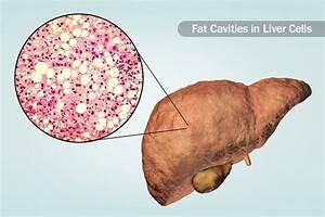 Visual Guide To Cirrhosis  Causes  Symptoms  Diagnosis