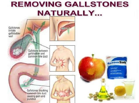 18 Natural Gallstones Home Remedies - Live Healthy With Patty
