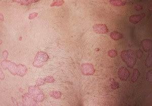 3 Different Ways to Treat Psoriasis | Favoriteplus.com Blog