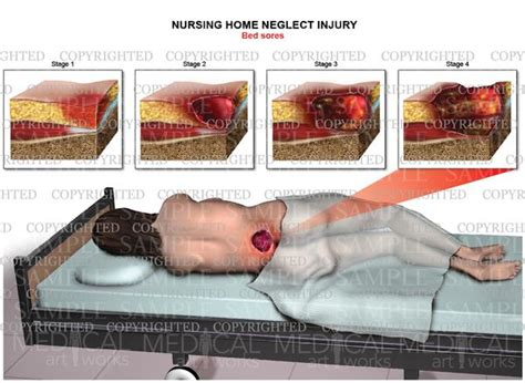 bed sores stages nursing home neglect injury bed sores stages