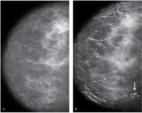 Breast Calcifications Radiology Key