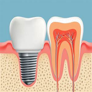 Calgary Dental Implants  U2022 Alpha Dental Care  U2022 403