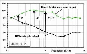 Dynamic Range Of A Typical Clinical Bone Conduction