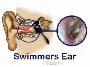 Diseases Treatment  Swimmers Ear Treatment