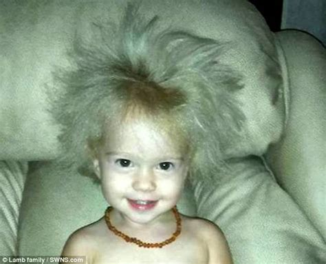 Mom Takes 2 Year Old Daughter To Doctor For Unusual Hair
