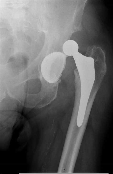 treatment  bilateral recurrent dislocation  hip pros