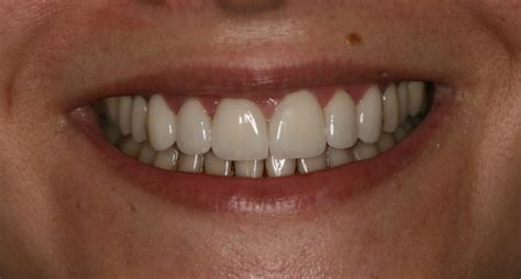 Veneers are covered only when medically necessary, but are not covered for purely cosmetic reasons. Veneers in Countryside, IL - Hope Dental