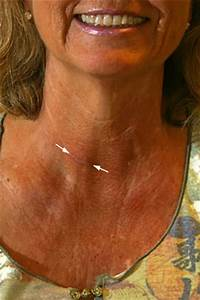 Of Thyroid Surgery