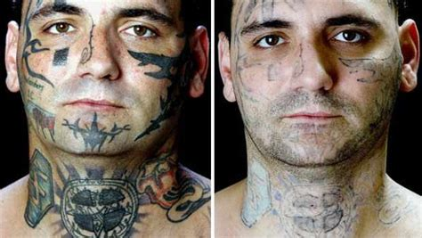 tattoo removal     shocking pictures