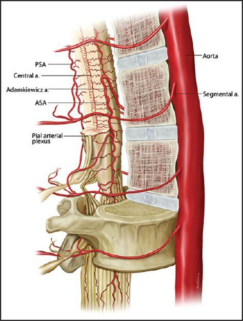 lumbar drains  thoracic aneurysm repairs  drain