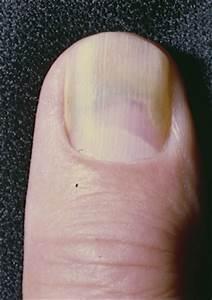 Green Nail Syndrome (GNS Pseudomonas nail infection ...