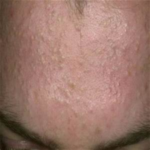 causes of forehead acne | Skin | tomuch.us