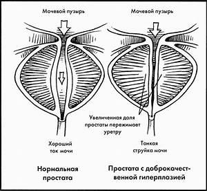 Первые признаки аденомы простатита у мужчин и лечение