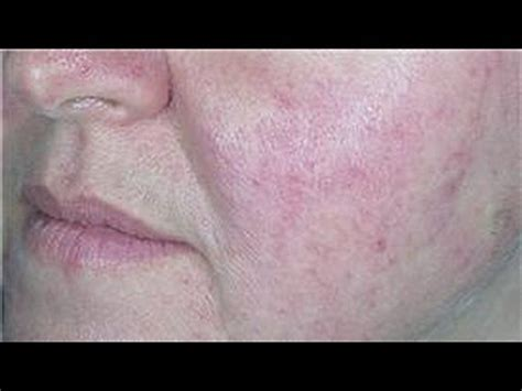 acne prone skin care   soothe red skin youtube