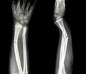 Childhood Forearm Breaks Resulting from Mild Trauma May ...