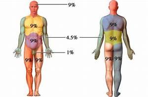 Burn Percentage Chart Rule Of 9 Rule Of Nines 화상 9의 법칙 네이버 블로그